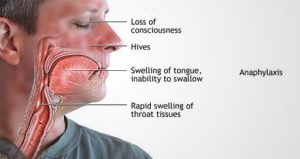 anaphylaxis-symptoms-food-allergy